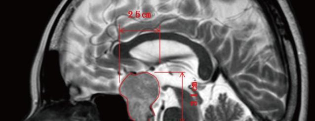 MRI1a