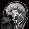 MRI 03