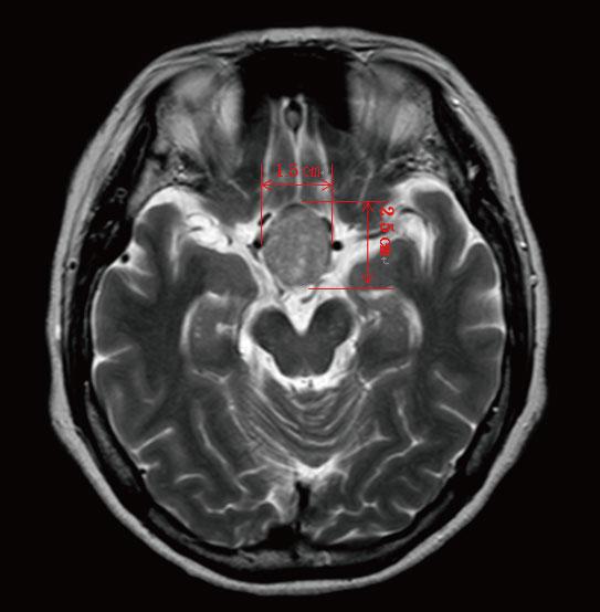 MRI2_03